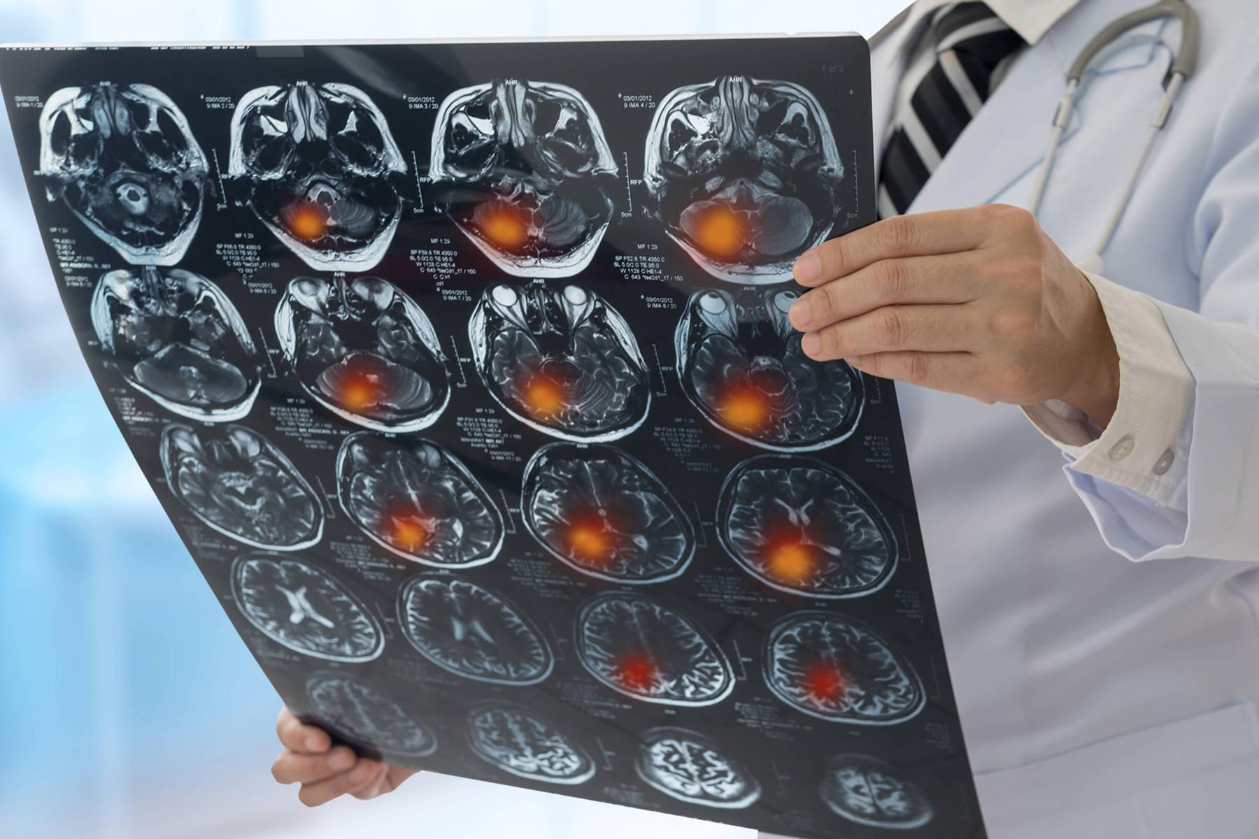 Ziua Mondială de Prevenire a Accidentului Vascular Cerebral
